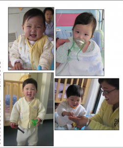 This baby girl was born with multiple congenital heart defects, which caused her heart to work much harder than necessary. Fortunately, China Care provided her with the Glenn shunt surgery she needed. Now that her heart is healthy, she is stronger and walks more steadily. She will return to the China Care Home in one year to see if a third surgery is necessary, but for now she is on her way to a bright future!