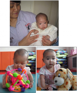 This is a baby girl born with spina bifida. Thanks to your generosity, China Care was able to provide her with the surgery she needed. She has recovered well, and is now a rosy and chubby-cheeked healthy girl. She loves being held and watching her nannies while she's being fed. Now this sweet little girl is well on her way to a better life!